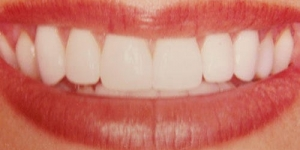 AFTER: Porcelain Veneers in combination with bleaching