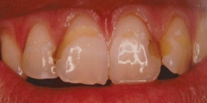 BEFORE: Replacement of discoloured and leaking restorations with bonding and bleaching