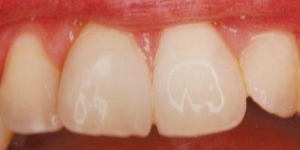 AFTER: Replacement of discoloured and leaking restorations with bonding and bleaching