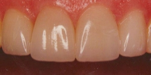 AFTER: Rebuilding heavily filled and weakened teeth with all porcelain crowns