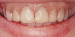 BEFORE: Gum lifts in combination with porcelain veneers