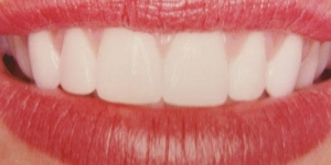 AFTER: Gum lifts in combination with porcelain veneers