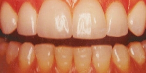 AFTER: Replacement of old metal bond crowns with all porcelain crowns