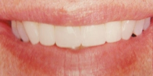 AFTER: Straightening and lengthening of crowded teeth with porcelain
