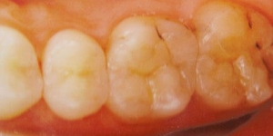AFTER: Replacement of leaking amalgam restorations with stronger porcelain inlays