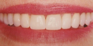 AFTER: Smile reconstruction and space closure with porcelain veneers and all porcelain crowns